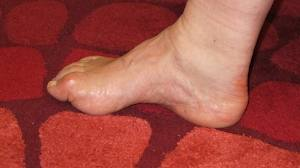 Cavus Feet and Plantar Fasciitis - Absolute Podiatry
