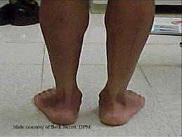 planus feet